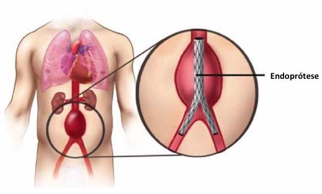 tratamento-aneurisma