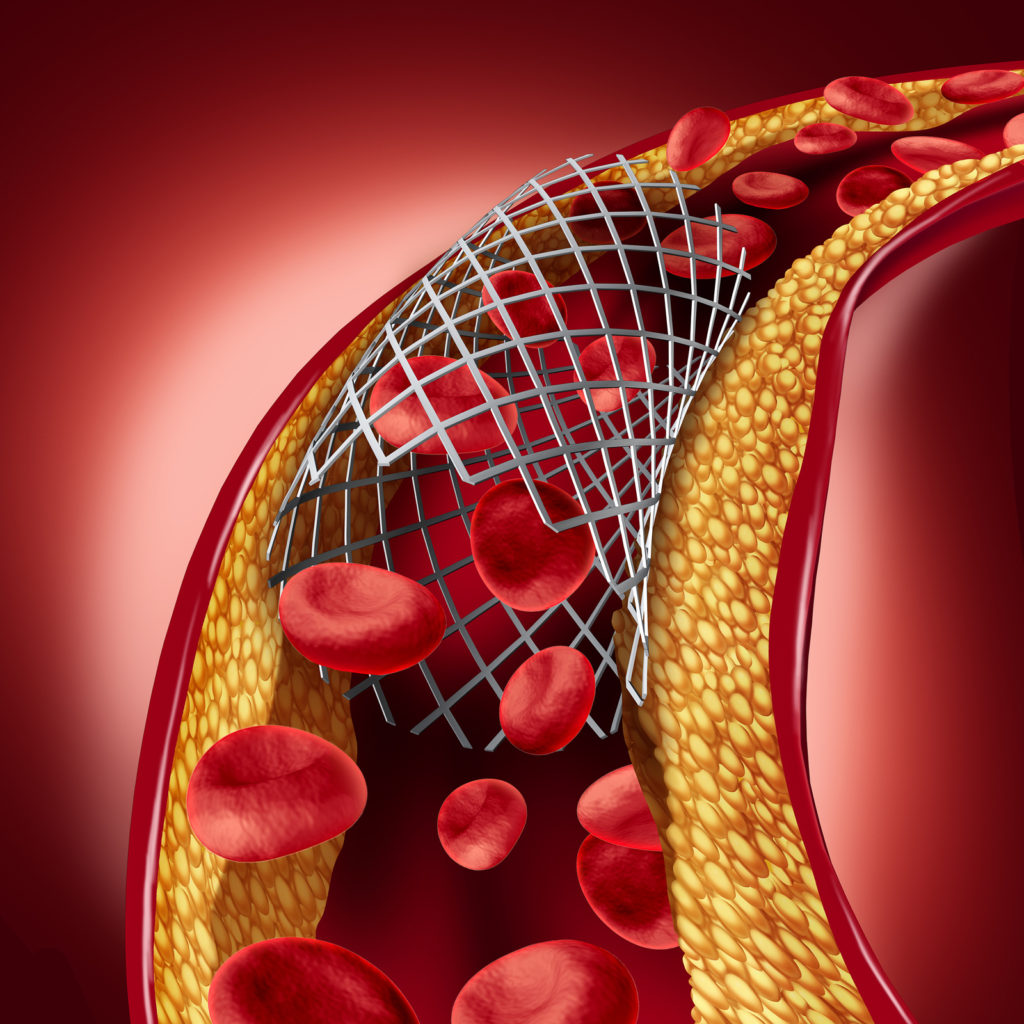 Stent implant concept as a heart disease treatment symbol with an angioplasty procedure in an artery that has cholesterol plaque blockage being opened for increased blood flow as a 3D illustration.