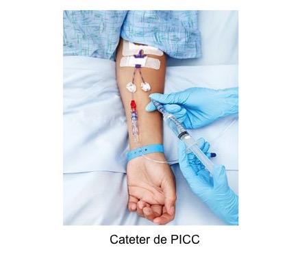 Cateter PICC