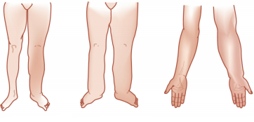 Foto 2 - Colocar perto de Quais sao os sinais e sintomas