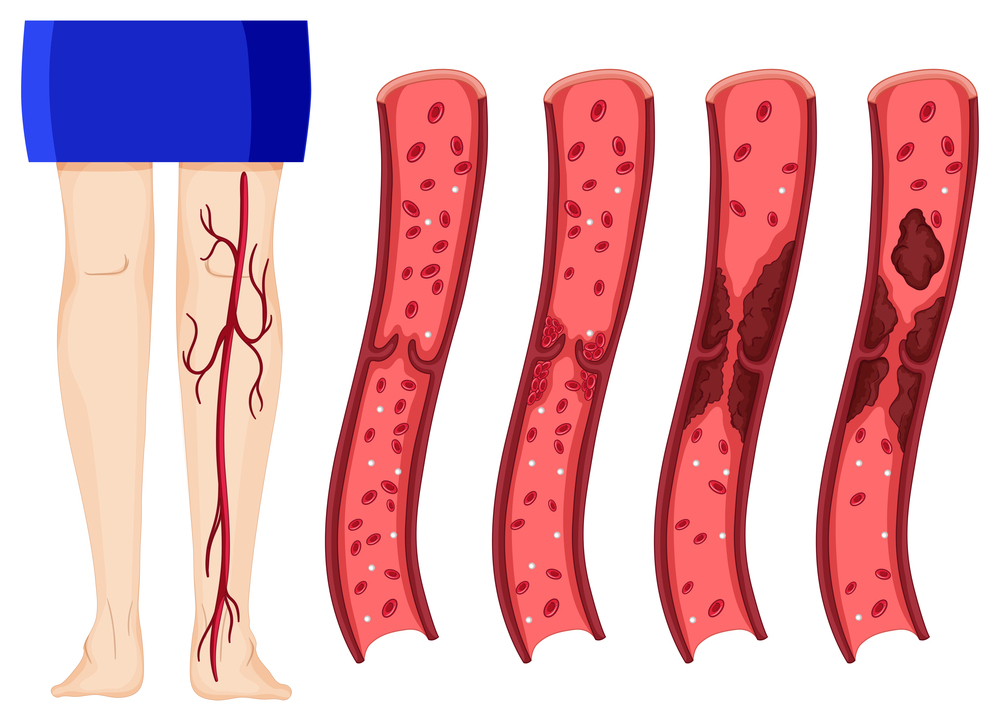 Blood clot in human legs illustration (deep vein thrombosis)