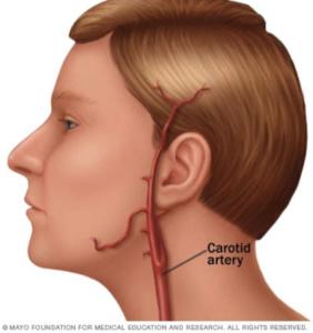 Artéria carótida