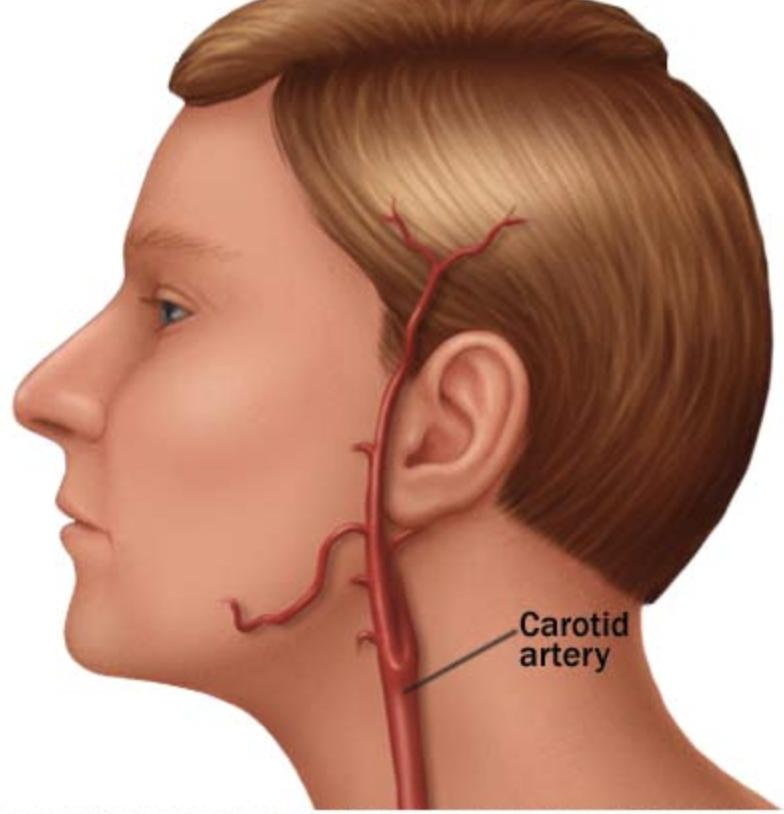 Artéria carótida carótida