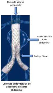 Aneurisma endoprótese endovascular