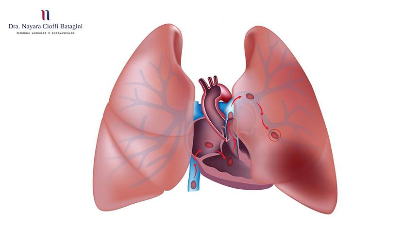 Embolia Pulmonar: Saiba o Que Causa e Como Prevenir