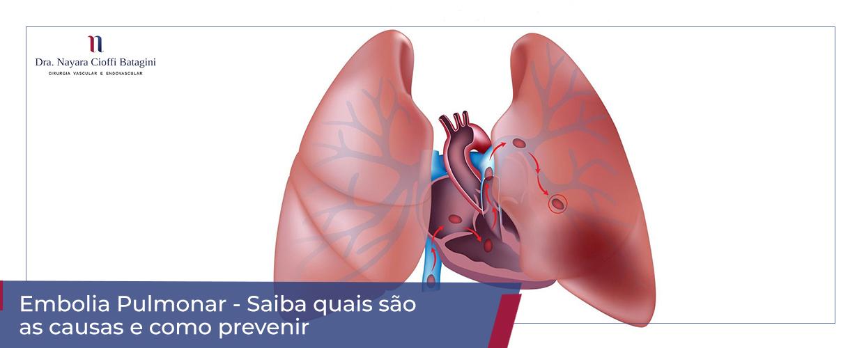Embolia Pulmonar – Saiba o Que Causa e Como Prevenir