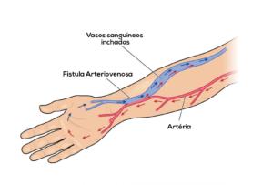 fístula-arteriovenosa