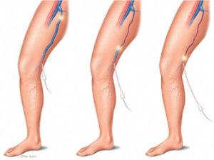 Laser na cirurgia de varizes