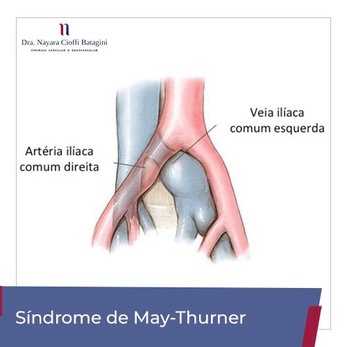 Síndrome de May-Thurner/Cockett – Entenda a Doença e Saiba Como Tratar
