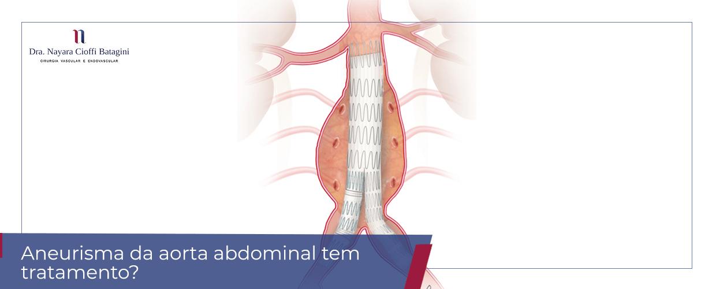 Aneurisma da aorta abdominal tem tratamento?