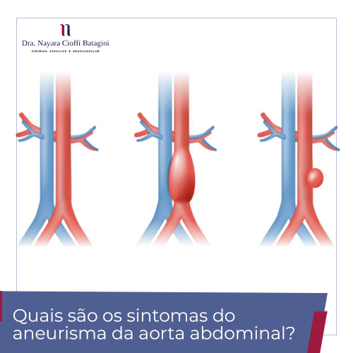 Quais são os sintomas do aneurisma da aorta abdominal?