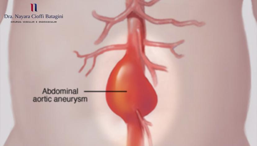 Qual é o Tratamento Menos Invasivo para Aneurismas