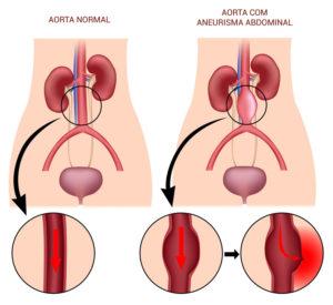aorta-2