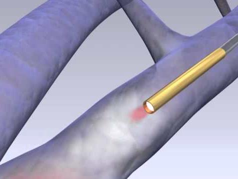 Cirurgia para varizes com o LASER ou Radiofrequência