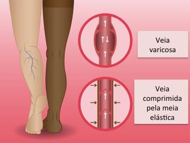Tratamento Clínico de varizes