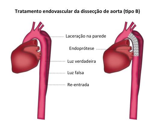 Dissecção de Aorta