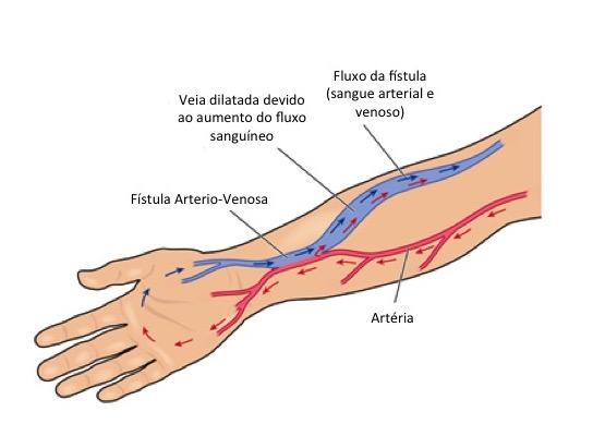 Fístulas para Hemodiálise