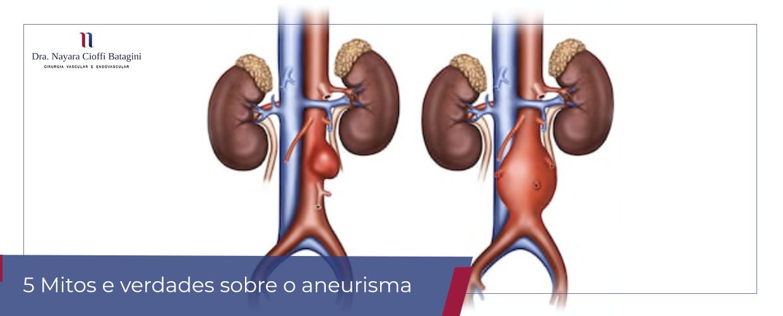 5 Mitos e Verdades sobre o aneurisma