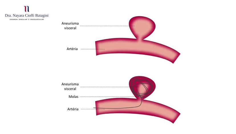 Tratamentos para aneurismas viscerais