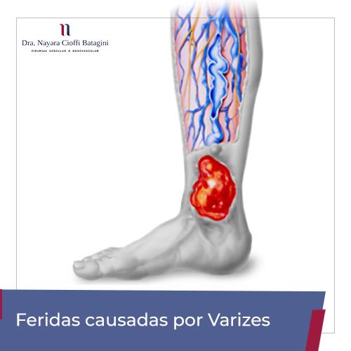Feridas Causadas Por Varizes – Úlceras Varicosas