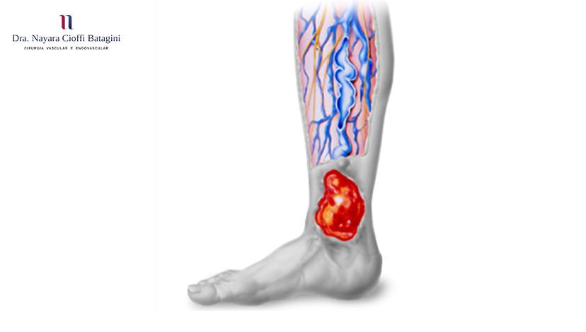 Feridas Causadas Por Varizes - Úlceras Varicosas