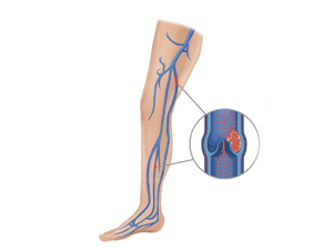 Como evitar a trombose após cirurgias?