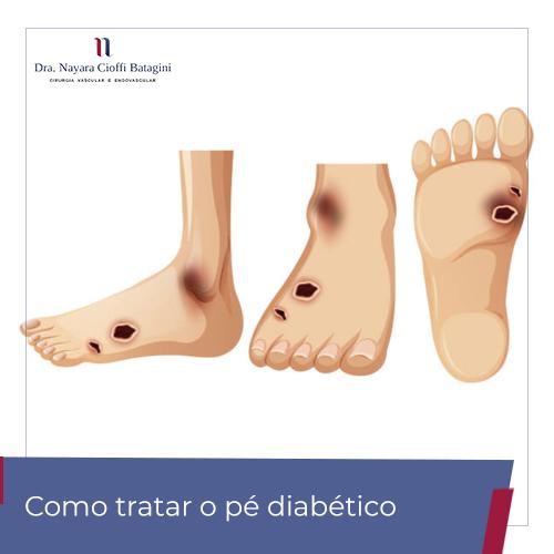 Como tratar o pé diabético