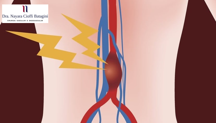 Jovens Podem Ter Aneurisma da Aorta Abdominal