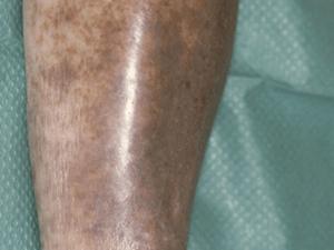 O que é dermatite ocre e por que ela aparece?