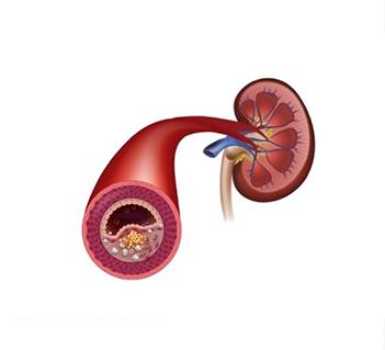 Obstrucao-de-Arterias-Renais