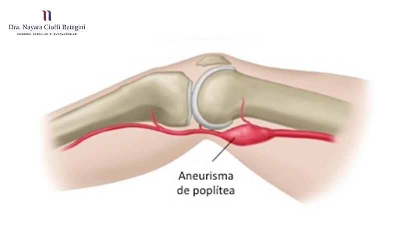 Quais são os sintomas do aneurisma da artéria poplítea?