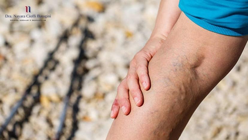 As veias retiradas em uma cirurgia de varizes fazem falta?