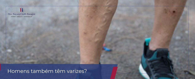 Homens também têm varizes?