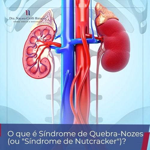 "O que é Síndrome de Quebra-Nozes (ou ""Síndrome de Nutcracker"")?"