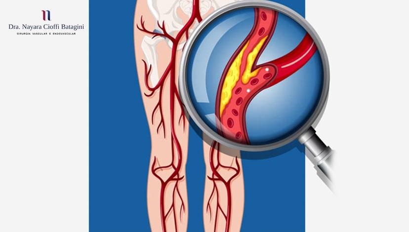 Quais são os sintomas da Doença Arterial Periférica?