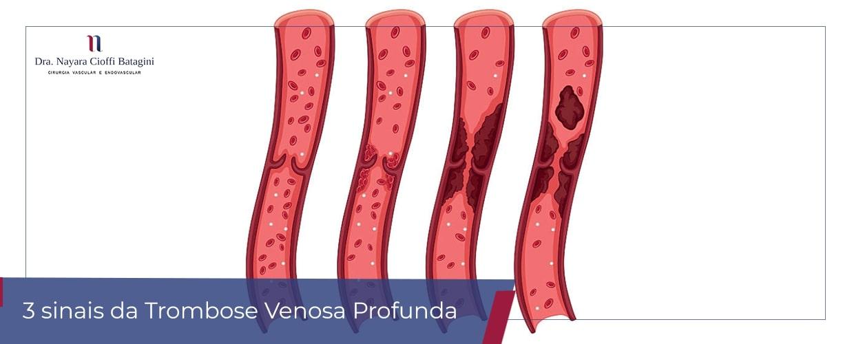 3 Sinais Típicos de Trombose Venosa Profunda
