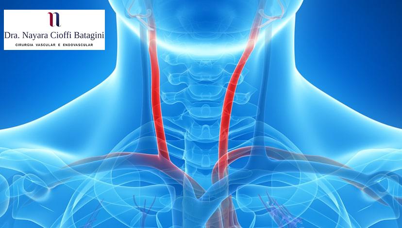 Saiba Quais São os Sintomas da Doença das Carótidas
