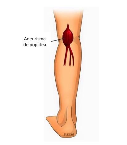 Aneurismas de Artéria Poplítea