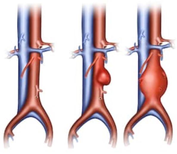 Aneurismas da Aorta